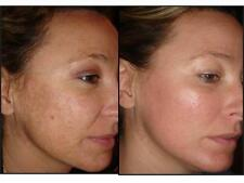 Strong Acid Ferulic + RETINOL Whitening Lightening ,Anti-ageing ,ANTI MELASMA