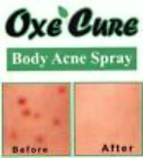 OXE CURE ACNE BODY WASH+ACNE SPRAY TREATMENT FIGHTS BODY BUTT BACK ACNE SPOTS