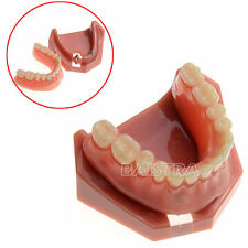 Teeth Implant  Repair Model Study Dental Teaching Model # 6007 Denture 2 Nails