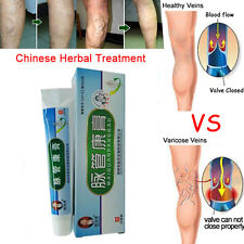 Hot Varicose Veins Treatment Leg Acid Itching Earthworm Old Bad Vasculitis Cream