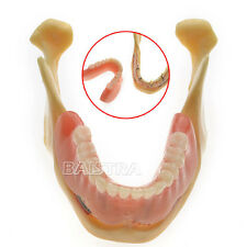 GER Dental Teeth Implant  Model of the Lower jaw for Study and Teach 2014 SINO