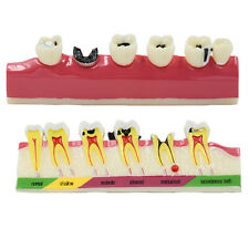 4:1 Size Dental Caries Removable Teeth Tooth Model Learn Study Model 1 Piece