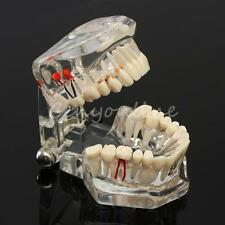 Dental Study Teach Implant Teeth Model Restoration Bridge Caries Tooth Education