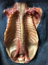 Antique Pediatric Wax Moulage Dissection of Sympathetic Nerves Ribs Skeleton