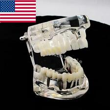 USA Dentist Dental Implant Disease Teeth Model Restoration Bridge Tooth Study CE