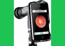 Welch Allyn iExaminer Adopter for PanOptic Ophthalmoscope LABGO