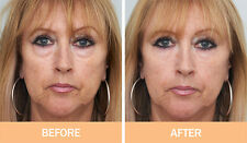ORIGINAL Instant Facelift x3 bottles, Puffy eyes,forehead,look 10 years younger!