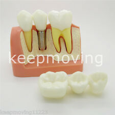 Dental Implant Teeth Model Analysis Crown Bridge Demonstration Teeth Model 2017