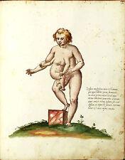 Vintage Medieval Framed Print – Conjoined Twins (Picture Poster Mythological Art
