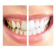 HOME TEETH WHITENING KIT GELS 35 36% MINT FLAVOUR, TOOTH WHITENER BLEACH 0.01%