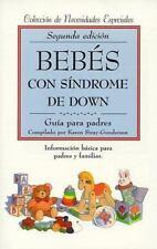 Bebs con sndrome de Down: gua para padres