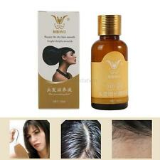 30ml  Hair Loss Fast Tonic Long Growth Serum Repair Root Regrowth Treament Hair