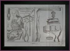 Planche originale CHIRURGIA OPERAZIONI AL CERVELLO ENCICLOPEDIA DEROT D'ALEMBERT