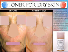 NATURAL ALCOHOL FREE TONER for Women for Dry Skin with Rosewater and Calendula