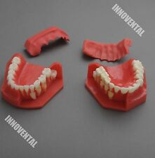 Dental Model #4006 01 - Teeth Eruption Development Model