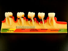 Dental Odontologia Periodontal Disease Dental Teeth Model Tooth ZYR-4010