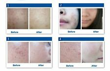 Skin Care intensive acne scar treatment acne scar blemish REMOVAL CREAM