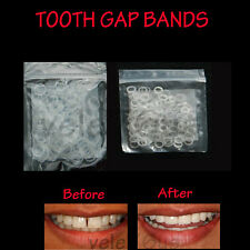 "CLEAR TEETH GAP BANDS 3/16"" ORTHODONTIC BANDS  HEAVY - FREE  FREE SHIPPING"