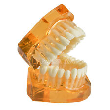 Dental Jaw Adult Tooth Model Teeth Removable Transparent Upper & Lower Study