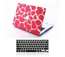 New Protector Matte Hardshell Hard Case Rubberized KB Cover For Apple MacBook