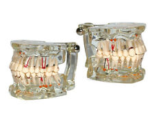 Human Natural Teeth Model/ Teaching Adult Pathology Model with Implant HST-C1