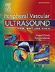 How, Why and When: Peripheral Vascular Ultrasound : How, Why and When by...