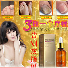 Foot Fungl Nail Treatment Strength Toenail Fungus Athletes Cream Infection Skin