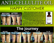 All Natural Anti Cellulite Oil Treatment That Works For Thighs with Caffeine