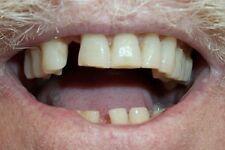 Temptooth: Missing Kit de remplacement de fausse dents