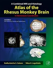 A Combined MRI and Histology Atlas of the Rhesus Monkey Brain in Stereotaxic Coo