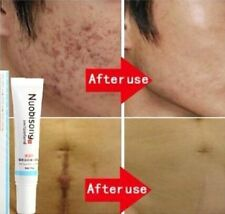 FD3787 Nuobisong Removal Acne Scar Stretch Marks Cream Treatment Face Care^