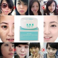 Lady Suction Spot Cream Face Care Whitening Remove Freckle Dark Spots Scar Cream
