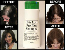 Hair Loss Pro Plus® STIMULATING HAIR LOSS REGROWTH SHAMPOO 300ml FREE P&P