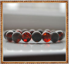 Round Cherry Baltic Amber Beads Bracelet 16.3 gr