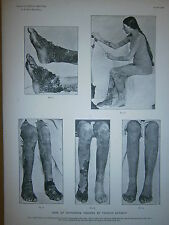 Gravure 19° Médecine anatomie maladie f ichthyosis treated by thyroid extract