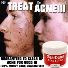 CLEARDERM ACNE CREAM LOTION CELEBRITY CLEAR SKIN SPOT PIMPLE BLACKHEAD FREE