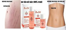 Bio-Oil Specialist Skincare for Scars,Stretch Marks 60ml
