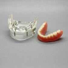 Dental Model #6002 02 - Overdenture Inferior with 4 Implants Demo Model