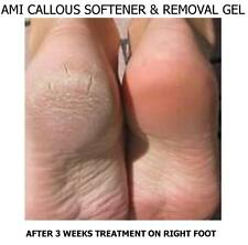 AMI Callous / Rough Skin Removal Gel 30mlx6 Instant Removal of Dry Skin (Unisex)