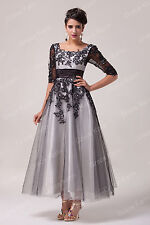 Black White Champagne Long/Short Bridesmaid Evening Prom Party Lace Formal Dress