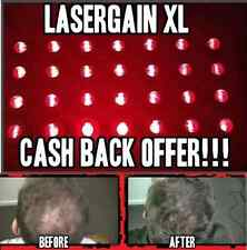 Laser Hair Growth Loss Regrowth Treatment (21x More Power Than Laser Comb!)