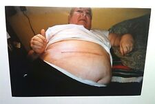 Vintage 2000s Photo Cancer Surgery Grandpa Showing Stomach Scar On Bed Heavy Set