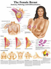 A3 Medical Poster – Female Breasts Self-Examination (Text Book Anatomy Pathology