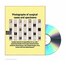 Photographs of surgical cases and specimens -Army Medical Museum-  CDROM