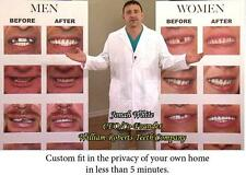 LARGE SIZE VENEERS INSTANT SMILE BEAUTIFUL TEETH new dentures COSMETIC MAKEOVER