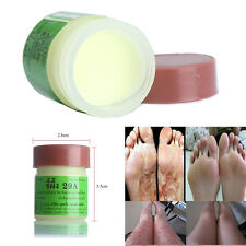1XPro Cure Psoriasis Ointment Ringworm Cream Tinea Stubborn Psoriasis Dermatitis