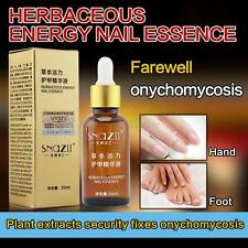Fungal Nail Treatment Essence Toe Nail Finger Anti Fungus Infection 30ml