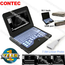 Portable laptop Machine Digital Ultrasound scanner,7.5M Linear Probe CONTEC CE