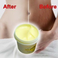 Remove Stretch Marks Treatment Postpartum Scar Repair Whitening CREAM New Gift