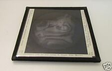 Glass Magic lantern slide HUMAN HEAD AUTOPSY DATED 1912 . MACABRE MEDICAL NO4